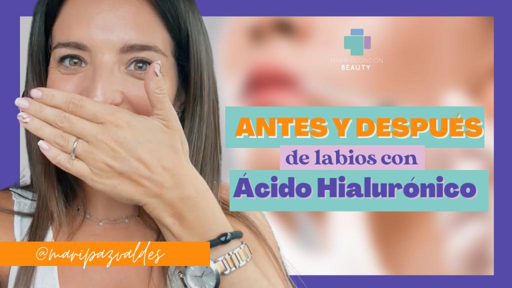 labios acido hialuronico
